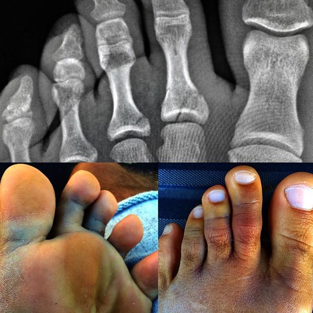 slater-foot.jpg
